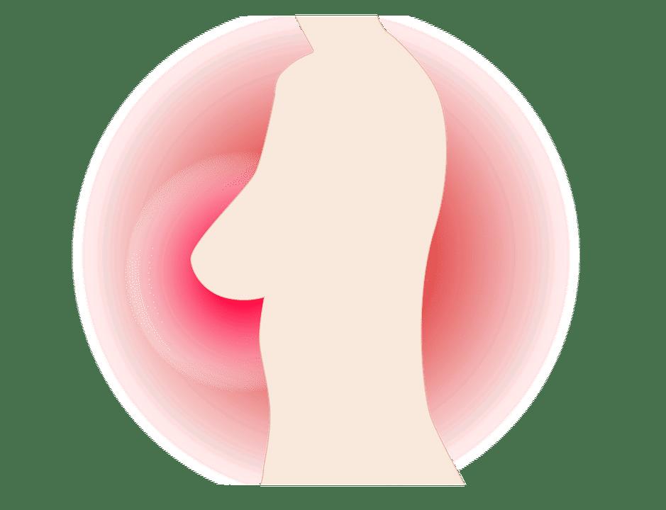 breast-2840338_960_720